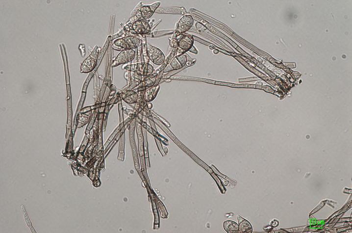 Wheat Blast - Spores