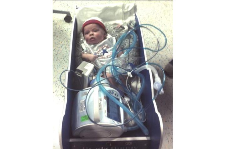 Baby Kase on ventilator