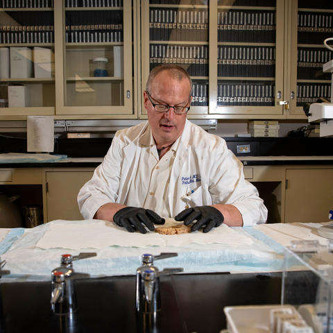 Dr. Pete Nelson in his lab at the Sanders-Brown Center on Aging. Nelson co-chaired an international workgroup that characterized another form of dementia. Mark Cornelison | UK Photo