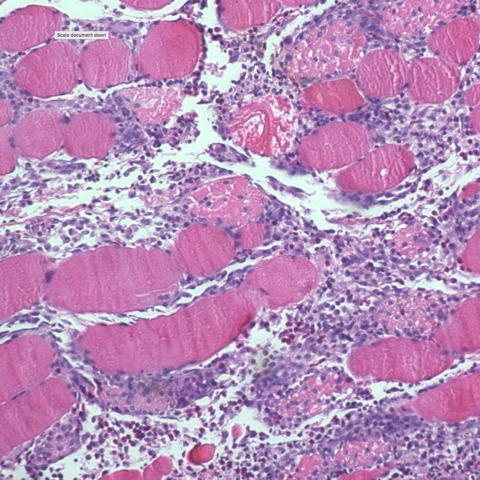 Photo of muscle cells after strenuous exercise