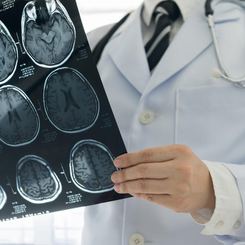 Researchers from the University of Kentucky's College of Medicine are leading a clinical study that could provide a promising new method for early detection of Parkinson's disease.