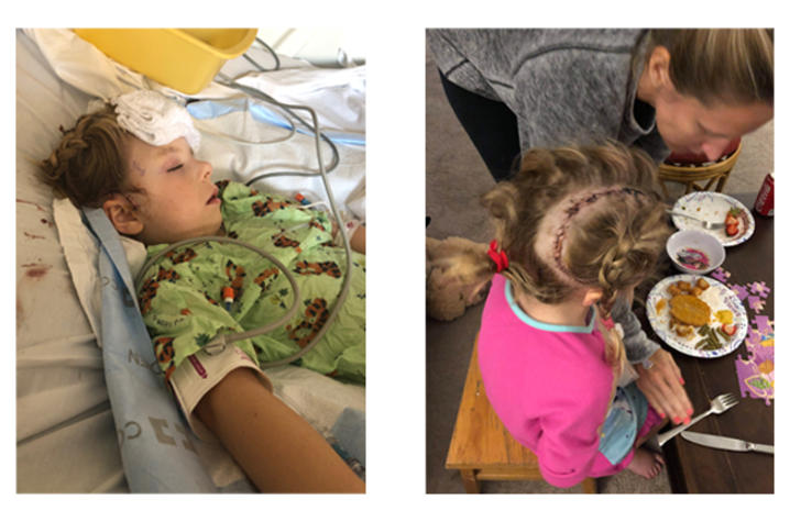 Two images of Sarah Beth in the hospital