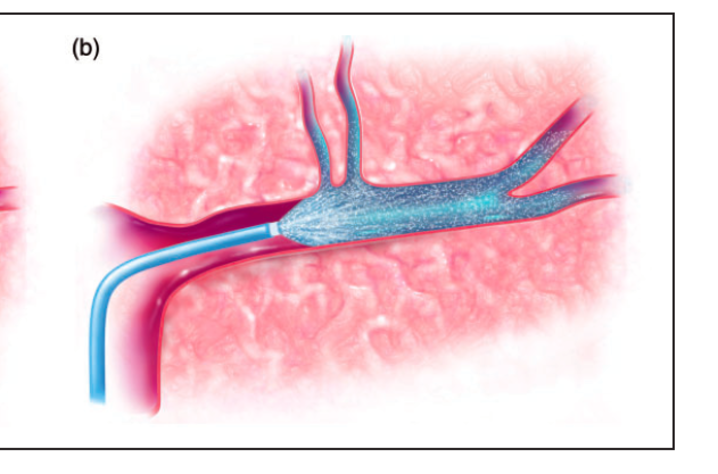 MAVARIC Clinical Trial for Stroke