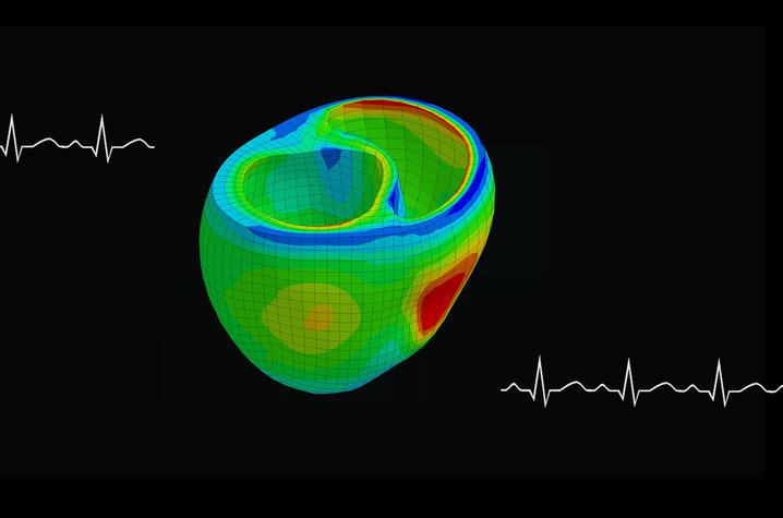 Photo of heart model