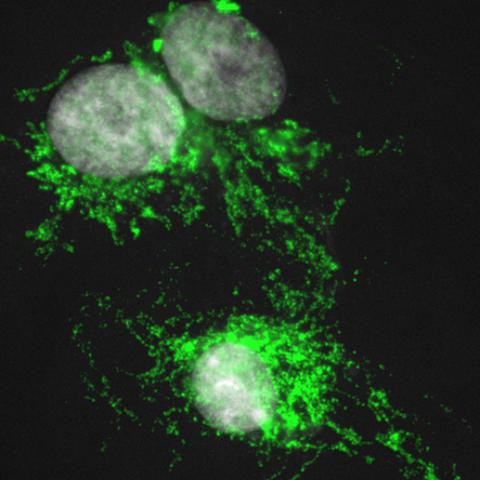 photo of macrophages from an African spiny mouse