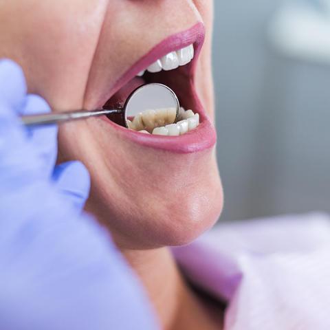 UKCD Offering Free Dental Screenings